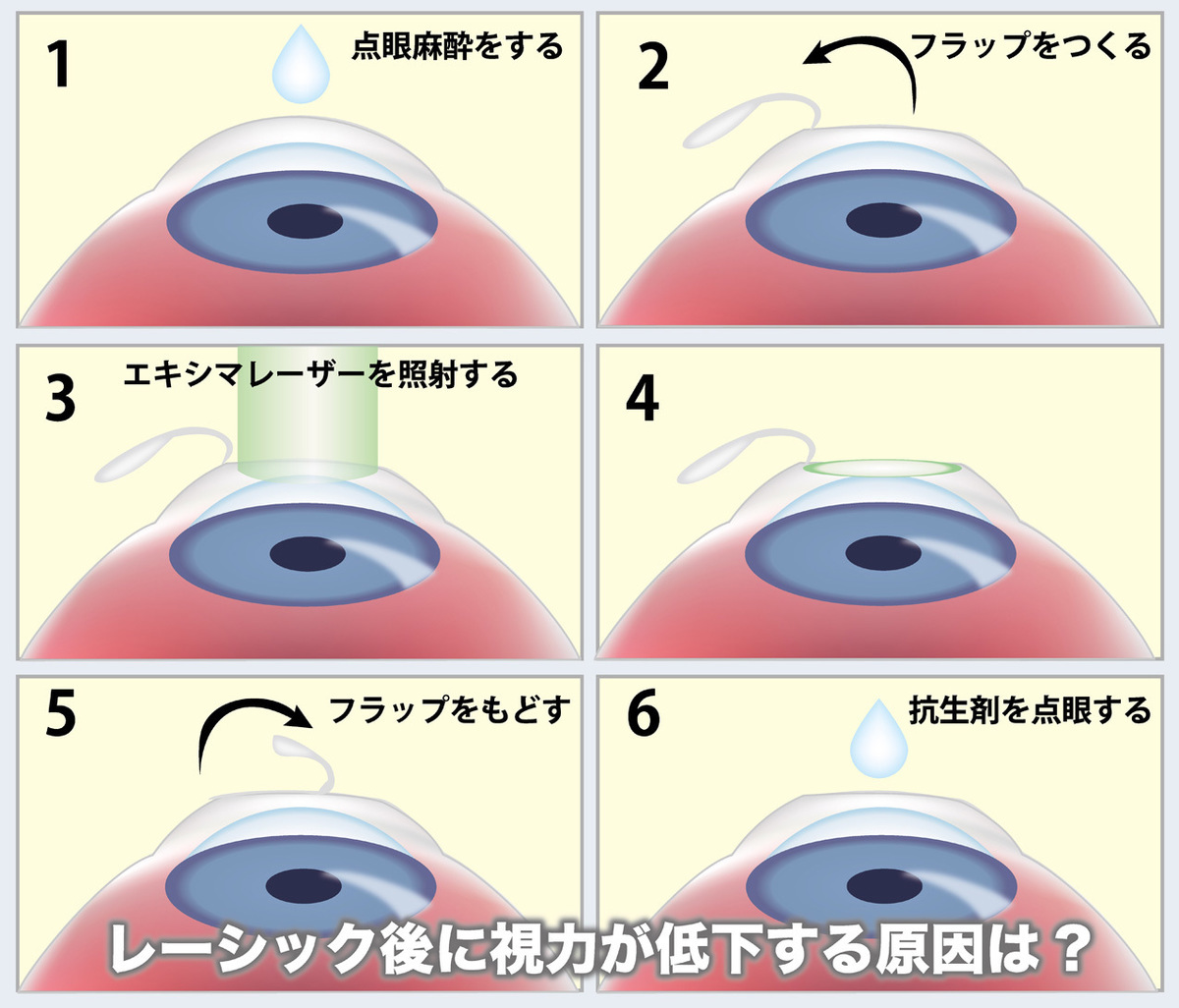 レーシック後に視力低下する原因は