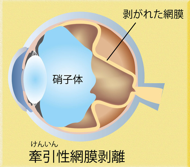 牽引性網膜剥離イラスト