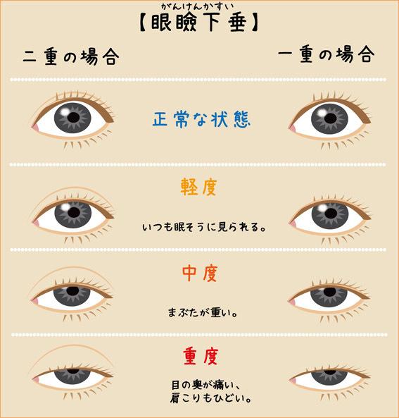 眼瞼下垂症イラスト
