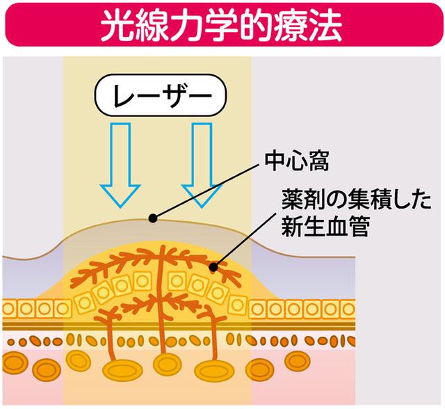 新生血管に集まる光感受性物質を腕の静脈に点滴したあと、発熱しない弱いレーザーを照射。周りの正常な組織を傷つけることなく、新生血管だけが退縮します。