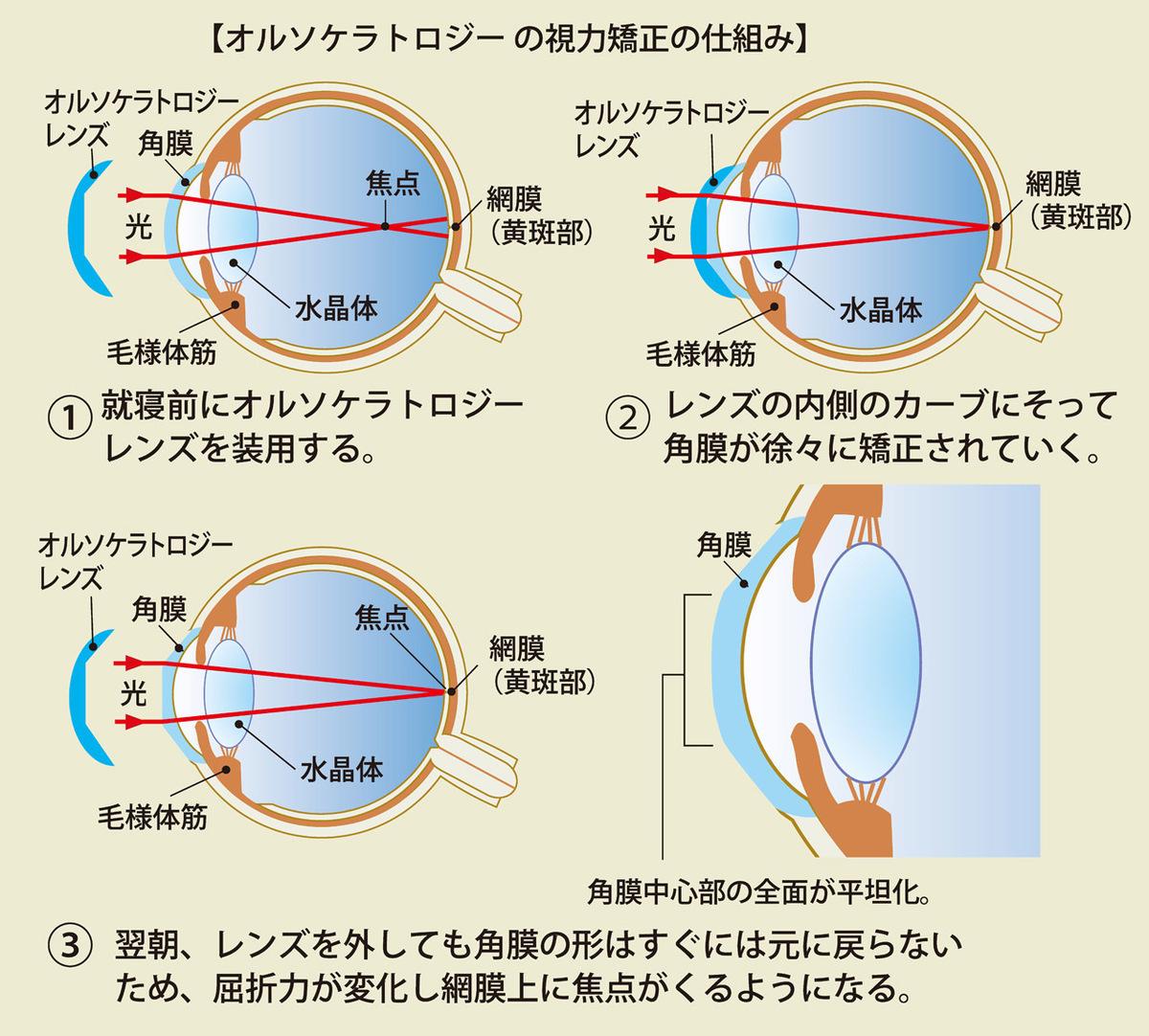 オルソケラトロジーの視力矯正の仕組み