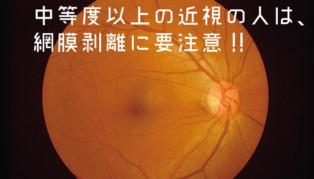 目の網膜写真
