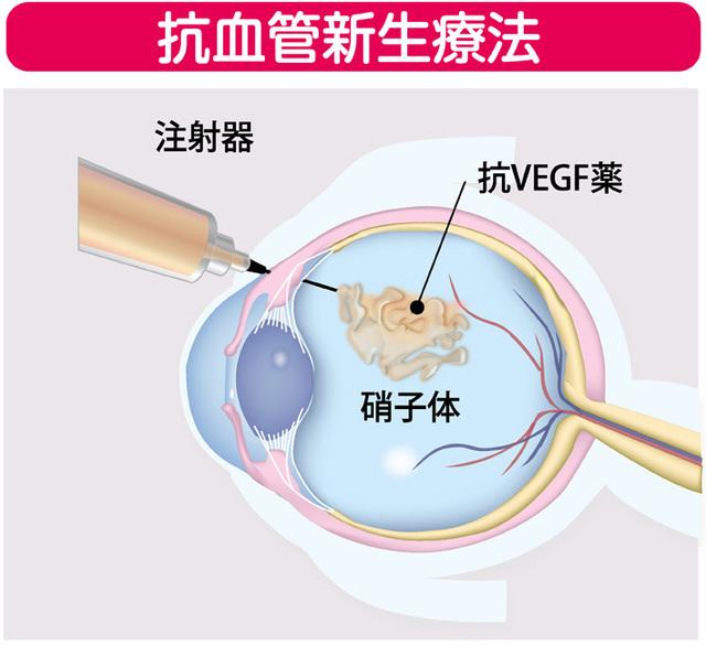 抗血管新生療法