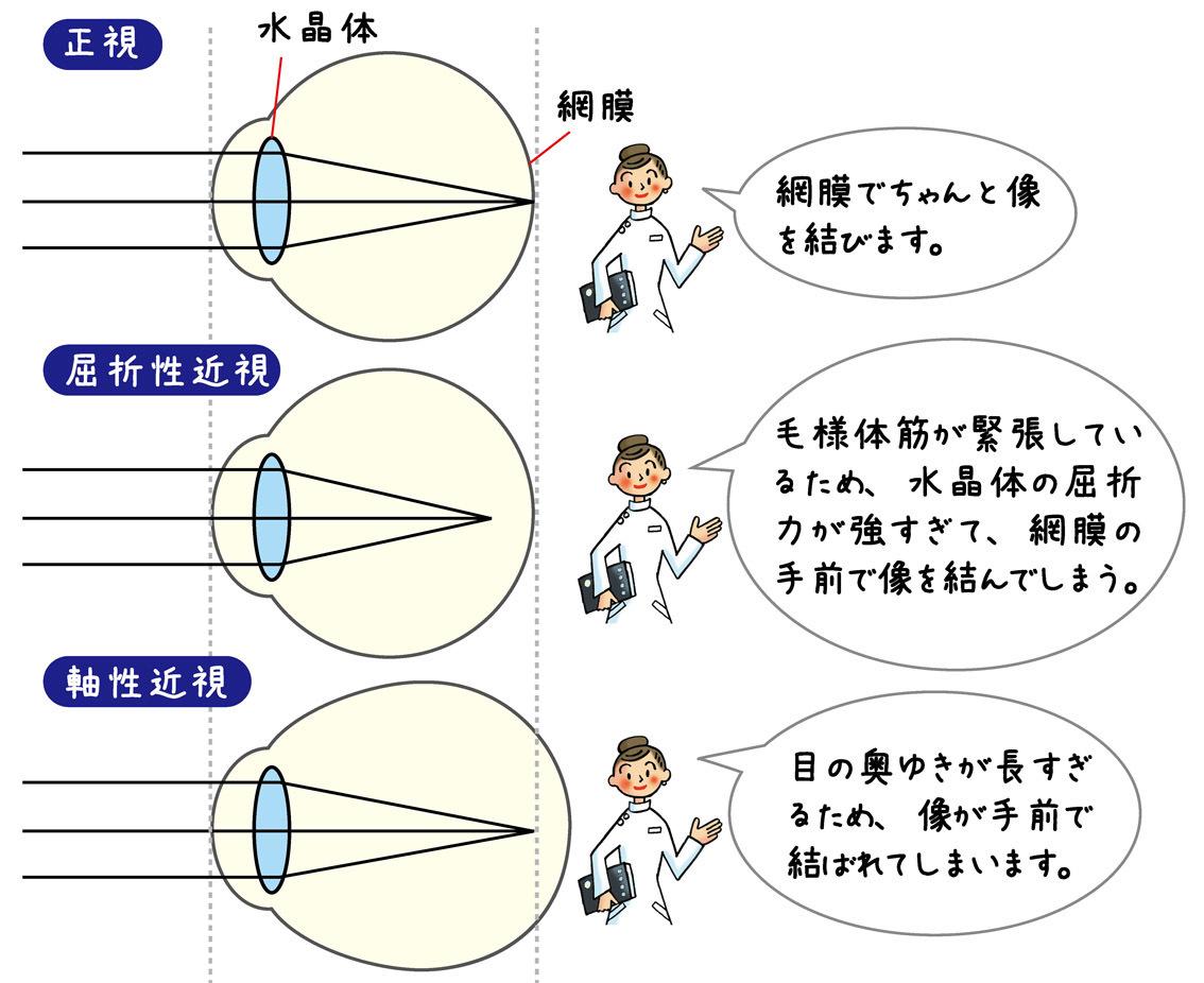 正視・屈折性近視・軸性近視