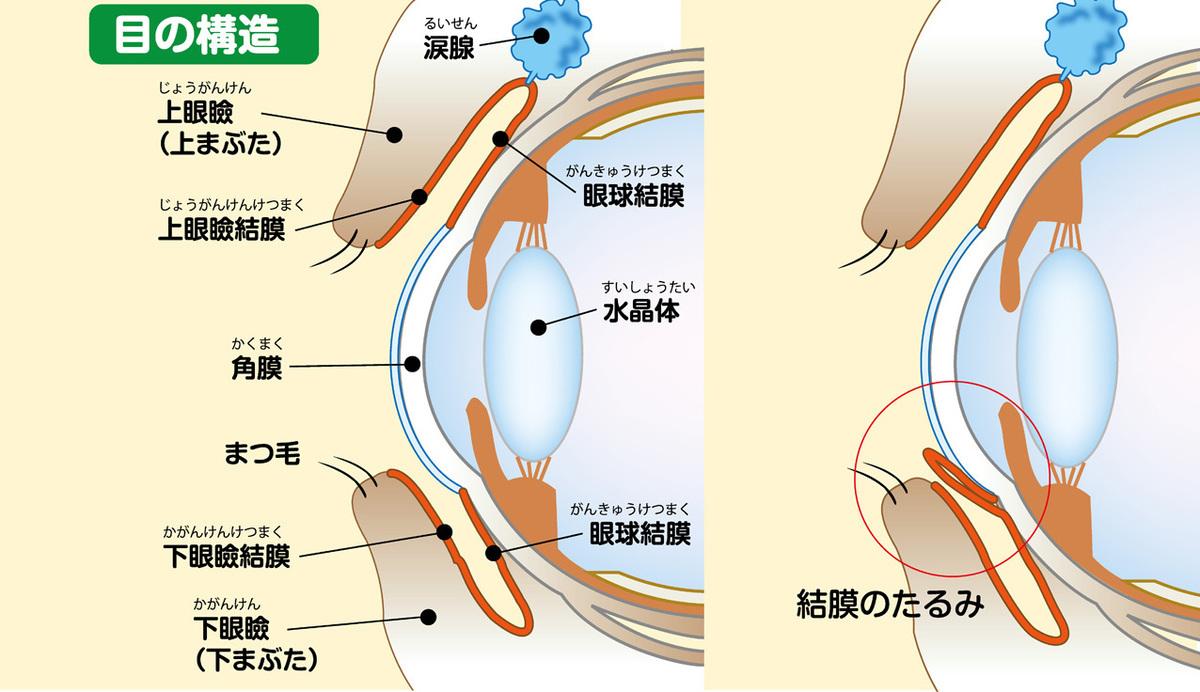 結膜弛緩の説明イラスト