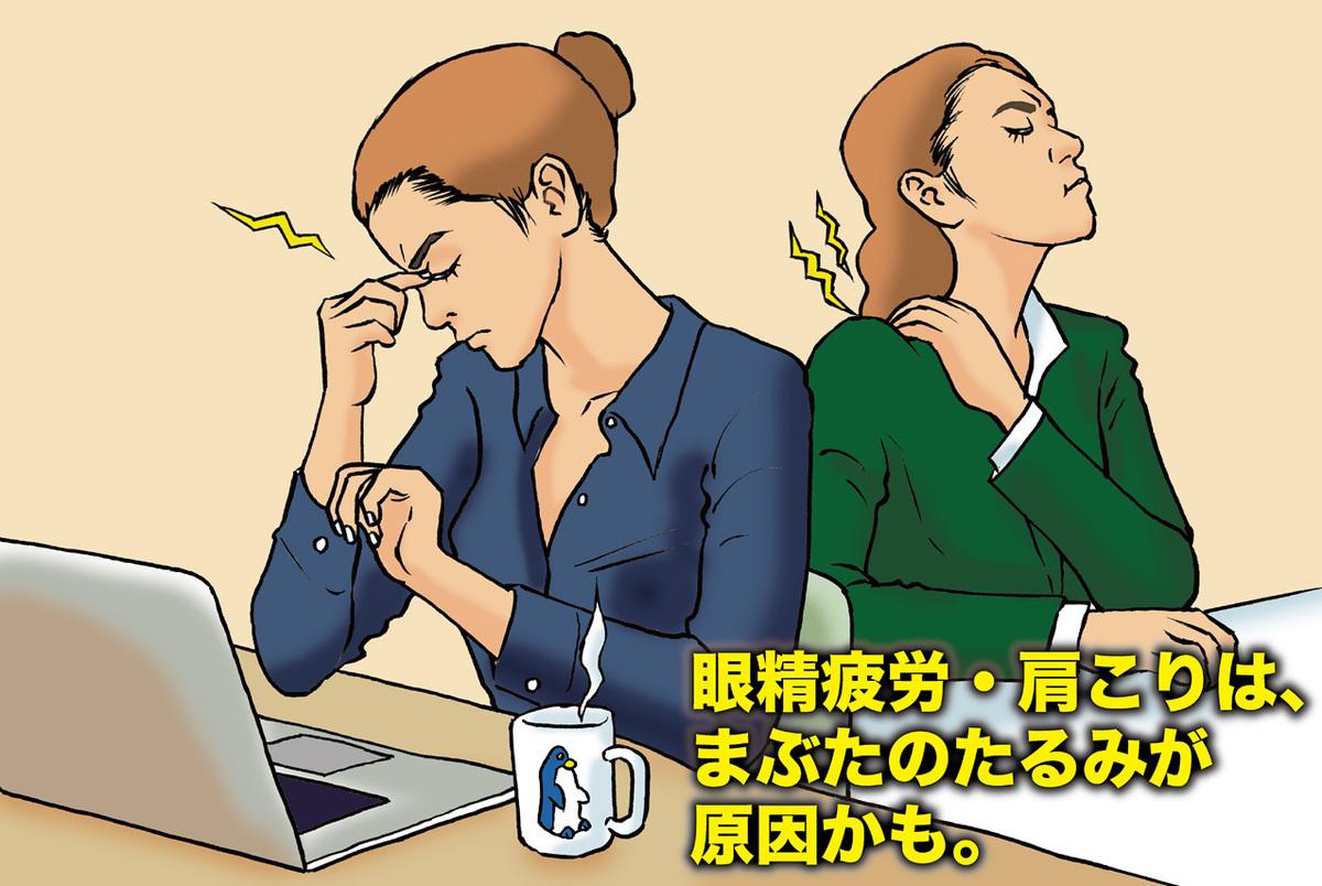 眼精疲労・肩こりは、まぶたのたるみが原因かも。テープを貼るだけで不調が治る?!