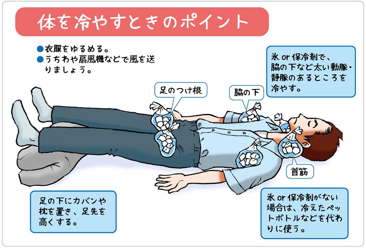 熱中症、体を冷やすときのポイント